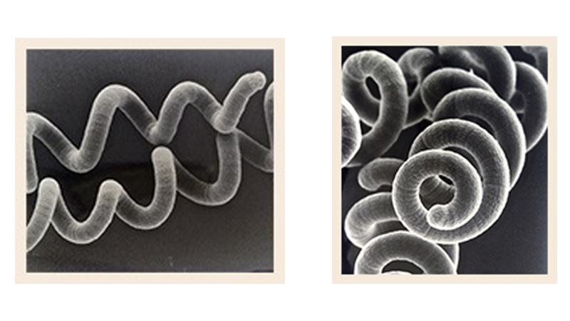 Spirale de spiruline au microscope